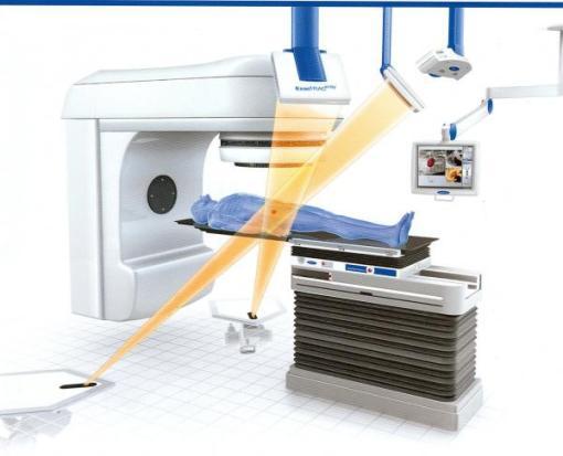 Schemat leczenia onkologiczneho radioterapią